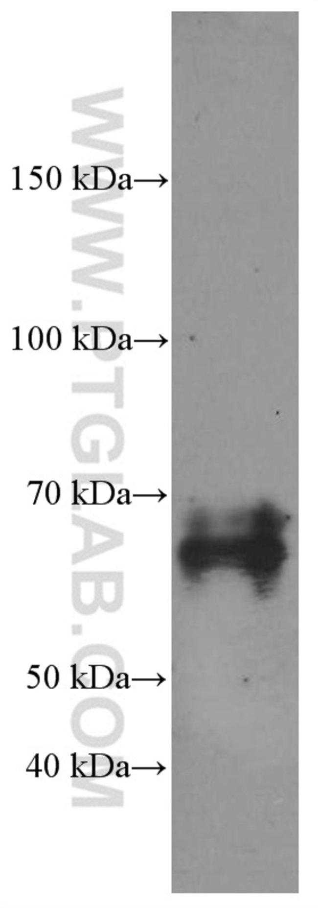 NUMB Mouse anti-Human, Mouse, Rat, Clone: 2G12B7, Proteintech 20 μL; Unconjugated Produkte