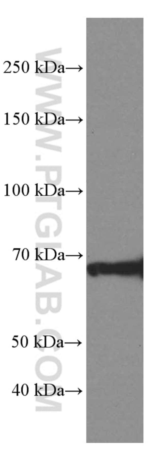 ZAP70 Mouse anti-Human, Mouse, Porcine, Clone: 1A11G9, Proteintech 20 μL; Unconjugated Produkte