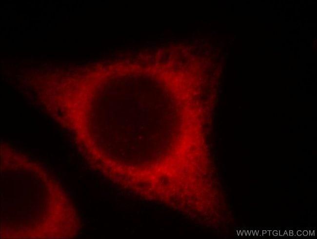 BCS1L Mouse anti-Human, Mouse, Clone: 3G6H1, Proteintech 150 μL; Unconjugated Ver productos