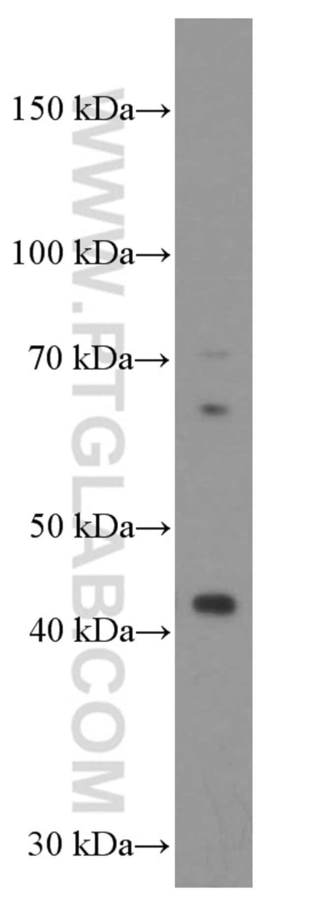 Gamma cystathionase Mouse anti-Human, Mouse, Rat, Clone: 2C7F9, Proteintech 150 μL; Unconjugated Ver productos