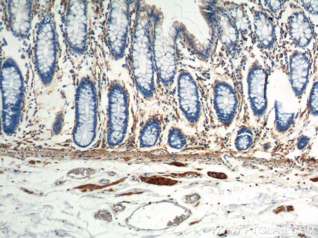 NCAM1/CD56 Mouse anti-Human, Mouse, Porcine, Rat, Clone: 1E8C9, Proteintech 20 μL; Unconjugated Produkte