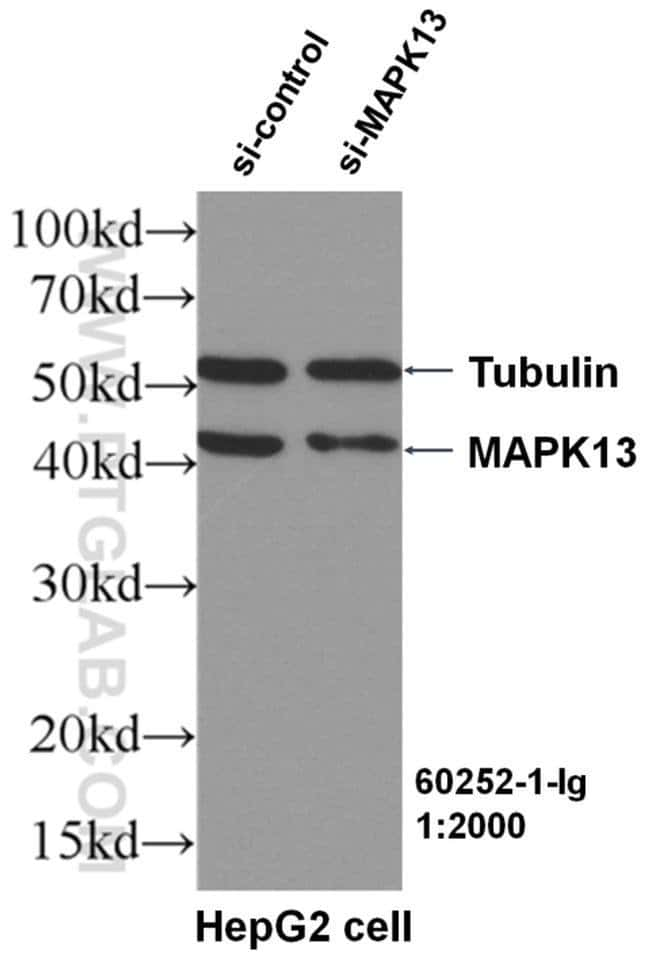 MAPK13 Mouse anti-Human, Mouse, Clone: 1B12A6, Proteintech 150 μL; Unconjugated Ver productos