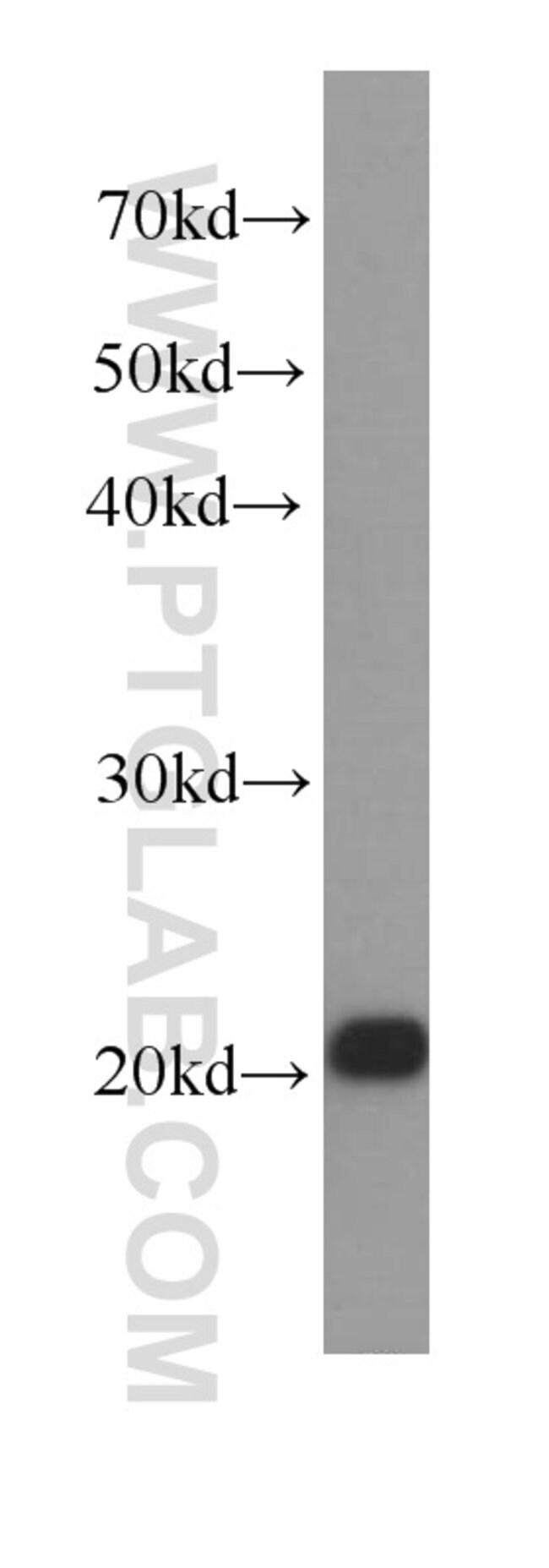 BAX Mouse anti-Human, Mouse, Rat, Clone: 4G5E8, Proteintech 150 μL; Unconjugated Ver productos