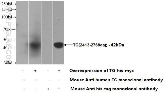 Thyroglobulin Mouse anti-Human, Clone: 4D3C5, Proteintech 150 μL; Unconjugated Ver productos