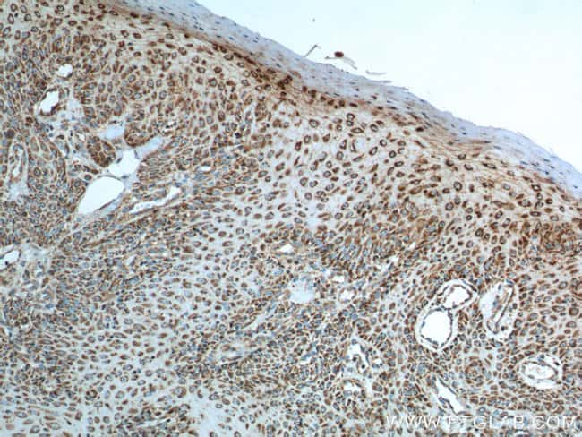 IL-19 Mouse anti-Human, Clone: 8H10H8, Proteintech 150 μL; Unconjugated Ver productos