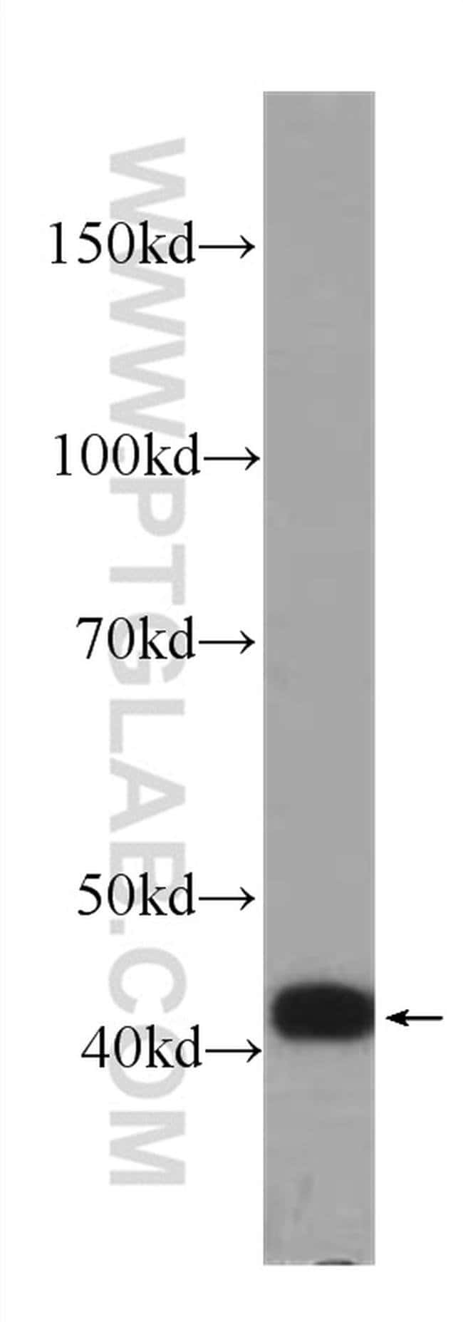 IL36RN Mouse anti-Human, Clone: 5F11G6, Proteintech 20 μL; Unconjugated Produkte