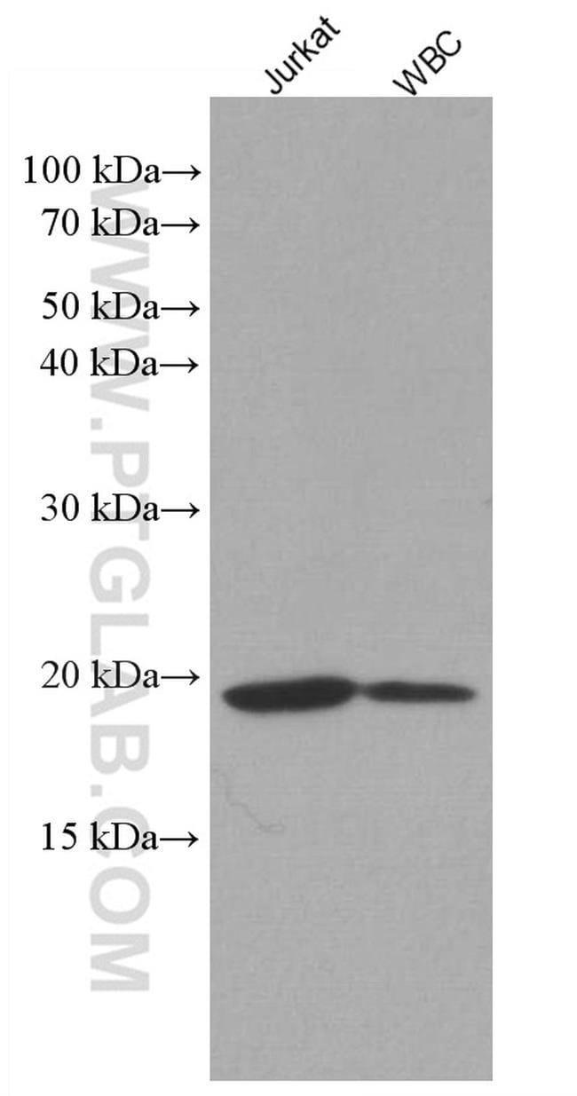 IL2 Mouse anti-Human, Clone: 2F11C5, Proteintech 150 μL; Unconjugated Ver productos