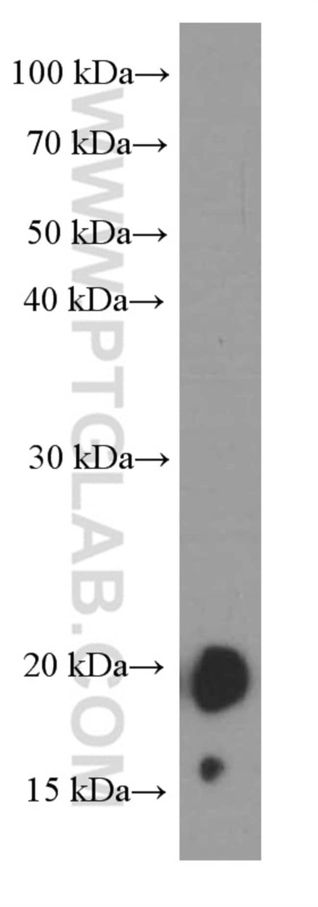 FGF18 Mouse anti-Human, Mouse, Clone: 1D11D12, Proteintech 150 μL; Unconjugated Ver productos