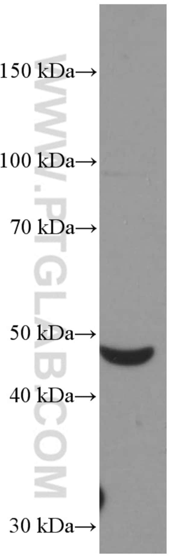 Myocilin Mouse anti-Human, Mouse, Porcine, Rat, Clone: 4B1F6, Proteintech 150 μL; Unconjugated Ver productos