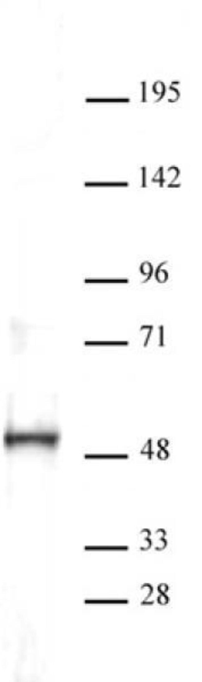ERR-alpha Rabbit anti-Human, Unconjugated, Polyclonal, Active Motif:Antibodies:Primary