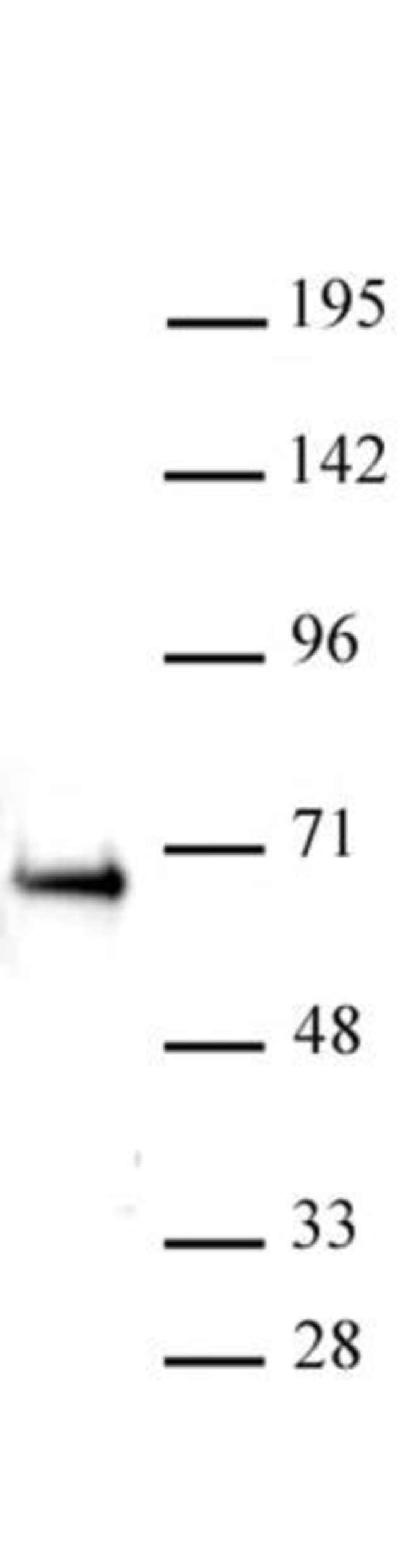 ETO / RUNX1T1 Rabbit anti-Human, Unconjugated, Polyclonal, Active Motif:Antibodies:Primary