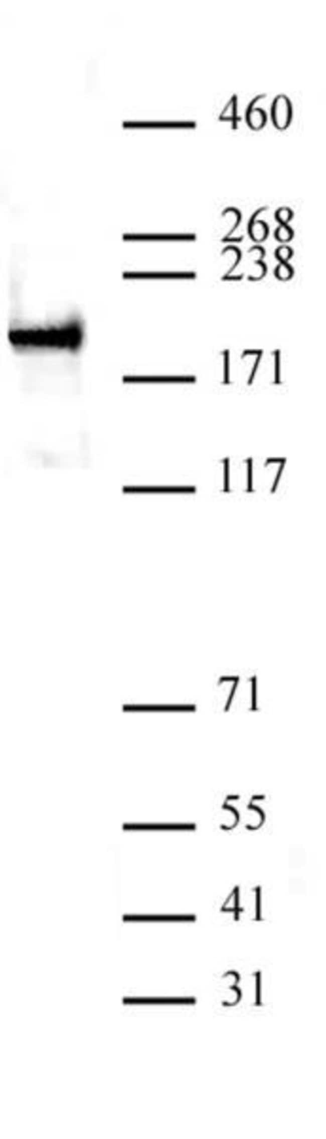 ZEB1 Rabbit anti-Human, Unconjugated, Polyclonal, Active Motif:Antibodies:Primary