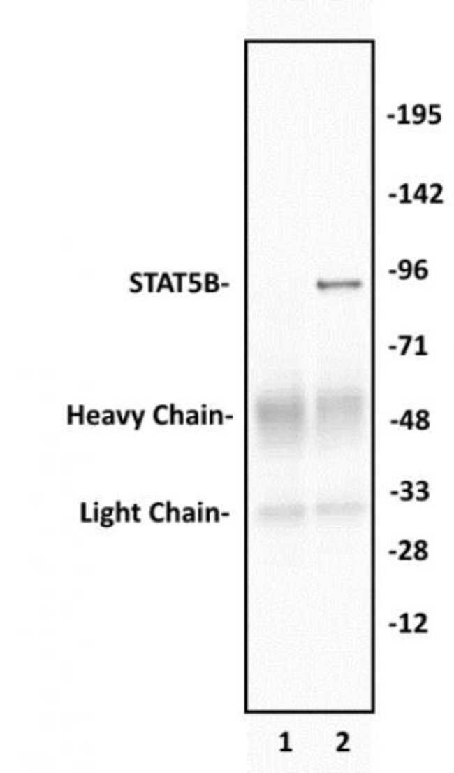 STAT5B Rabbit anti-Human, Unconjugated, Polyclonal, Active Motif:Antibodies:Primary