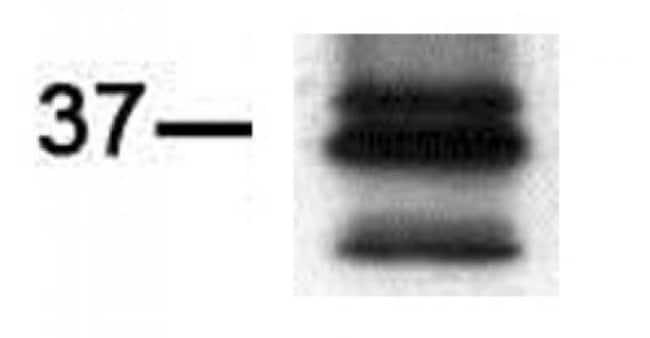 PIM2 Rat anti-Human, Clone: CHU61, Active Motif:Antibodies:Primary Antibodies