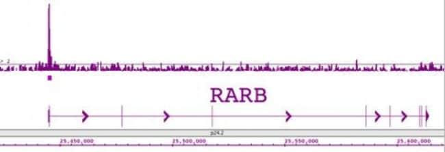 LXR-beta Rabbit anti-Human, Unconjugated, Polyclonal, Active Motif:Antibodies:Primary