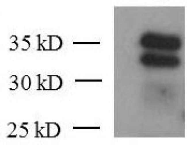 KLF6 Mouse anti-Human, Clone: 2A2, Active Motif:Antibodies:Primary Antibodies
