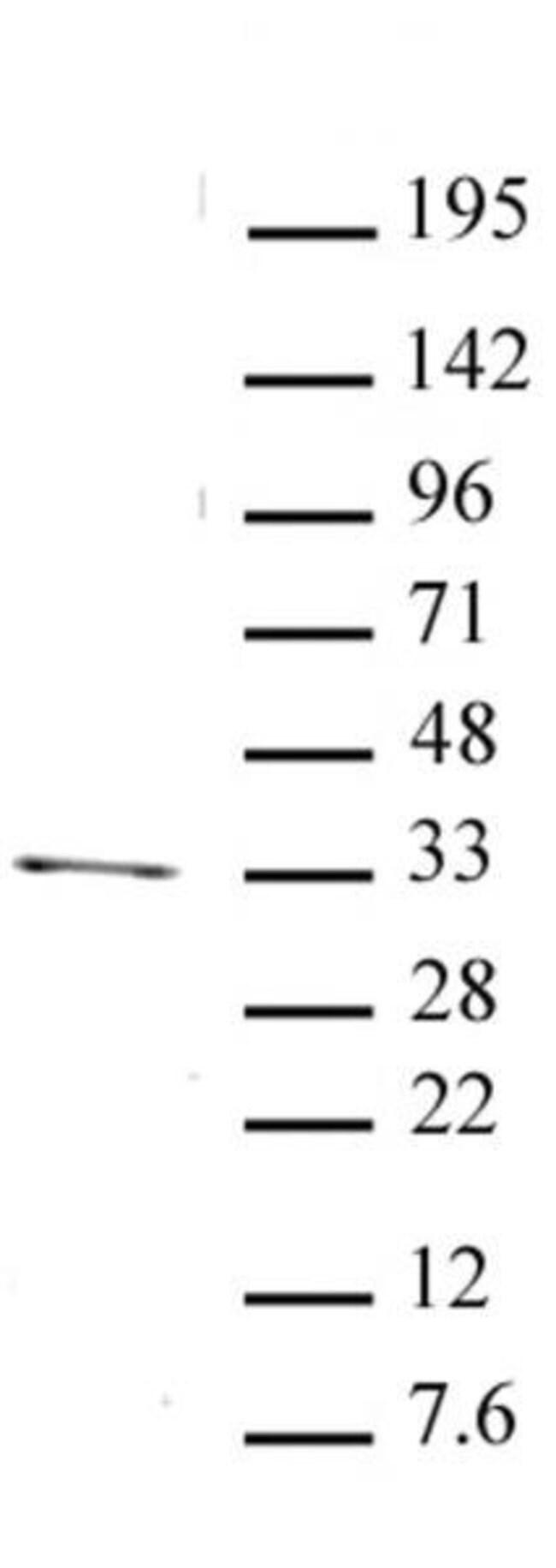 PITX2 Rabbit anti-Human, Unconjugated, Polyclonal, Active Motif:Antibodies:Primary