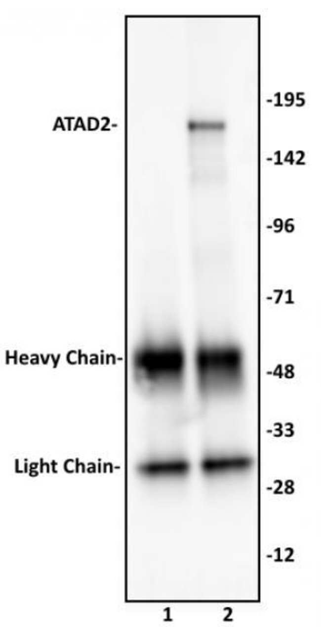 ATAD2 Rabbit anti-Human, Unconjugated, Polyclonal, Active Motif:Antibodies:Primary