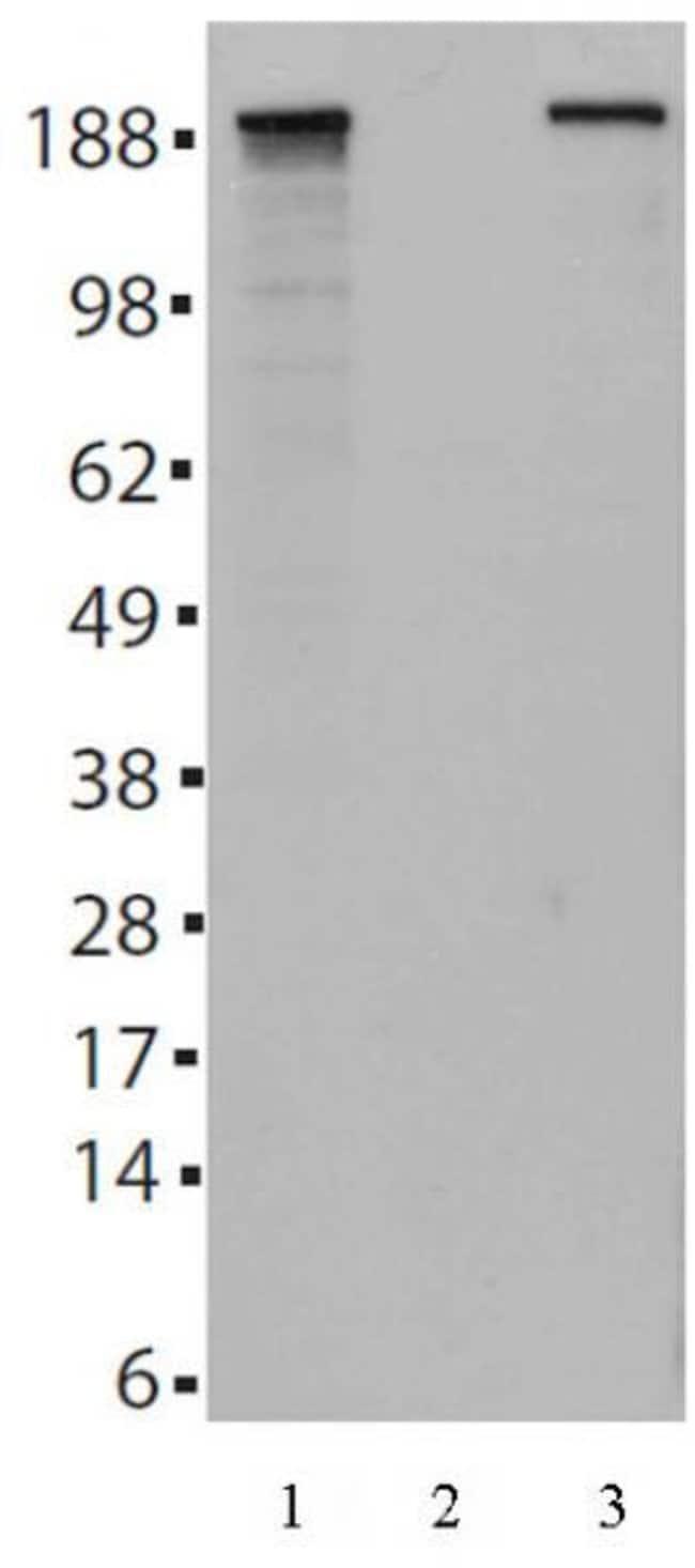 Tet2 Mouse anti-Human, Clone: 21F11, Active Motif:Antibodies:Primary Antibodies