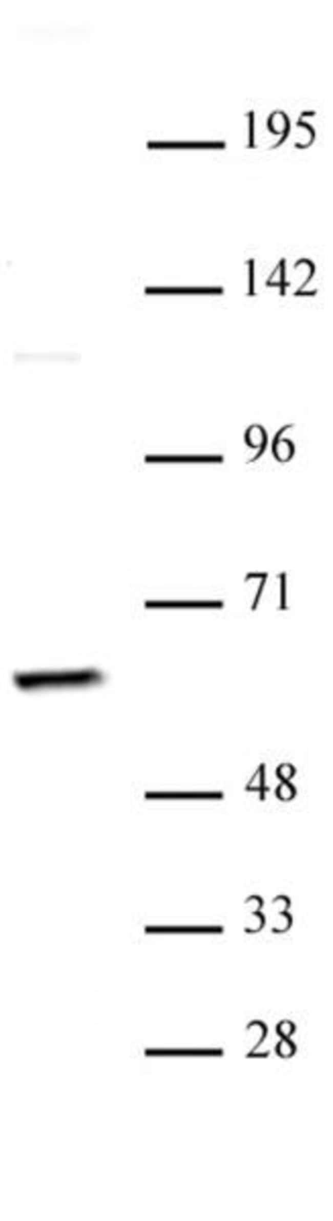 PKM2 Rabbit anti-Human, Unconjugated, Polyclonal, Active Motif:Antibodies:Primary