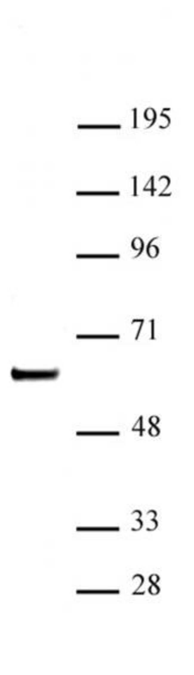 SETD7 / SET7 Rabbit anti-Human, Unconjugated, Polyclonal, Active Motif:Antibodies:Primary