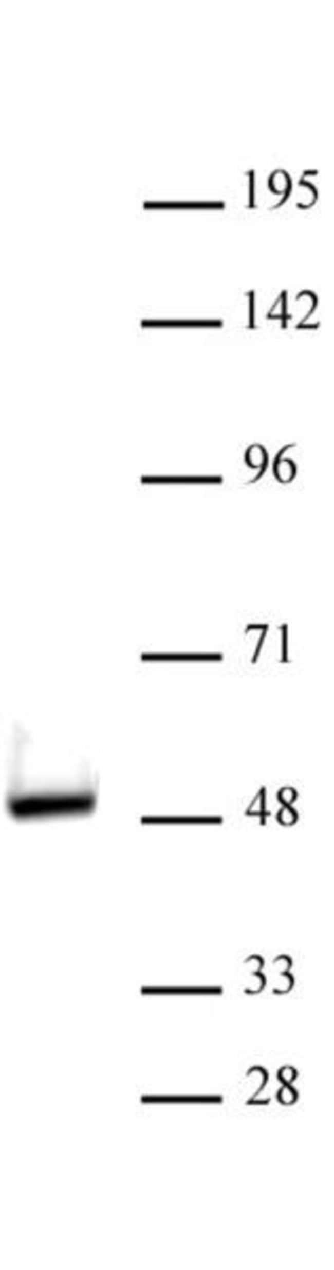 VDR Rabbit anti-Human, Unconjugated, Polyclonal, Active Motif:Antibodies:Primary