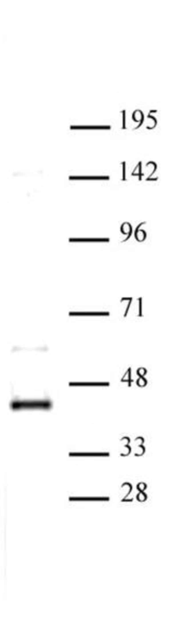 CDK9 Rabbit anti-Human, Unconjugated, Polyclonal, Active Motif:Antibodies:Primary