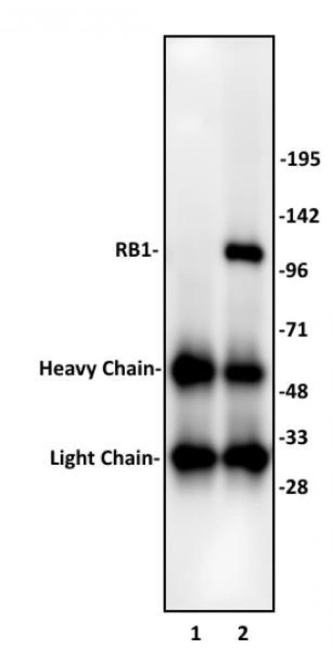 RB1 Rabbit anti-Human, Unconjugated, Polyclonal, Active Motif:Antibodies:Primary