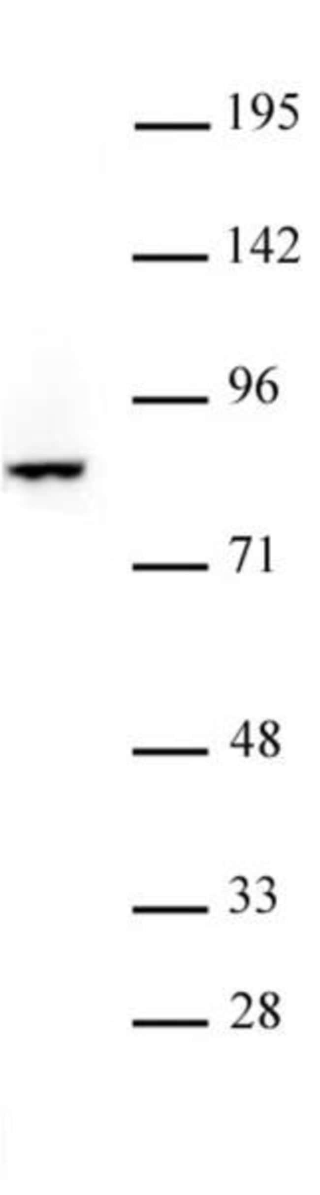 FOXO3 Rabbit anti-Human, Unconjugated, Polyclonal, Active Motif:Antibodies:Primary