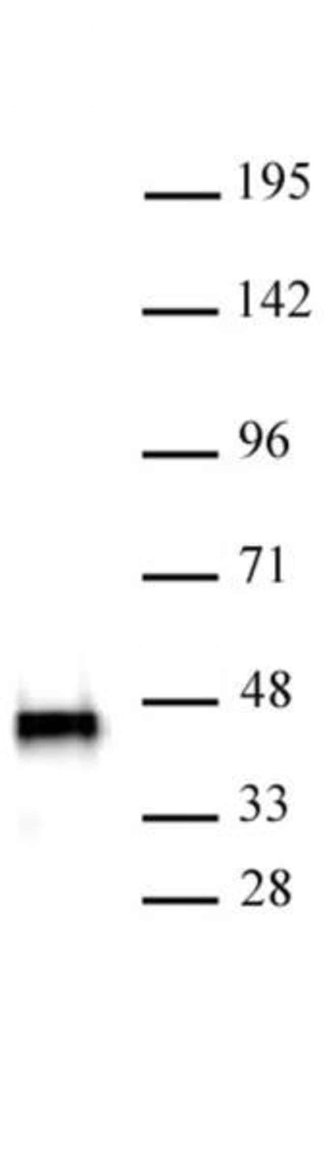 SMARCB1 Mouse anti-Human, Clone: 2C2, Active Motif:Antibodies:Primary Antibodies