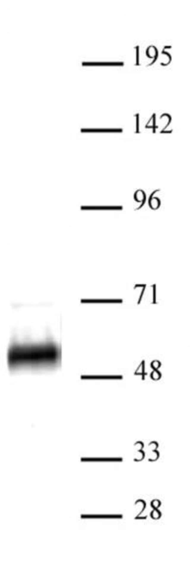 p53 Rabbit anti-Human, Unconjugated, Polyclonal, Active Motif:Antibodies:Primary