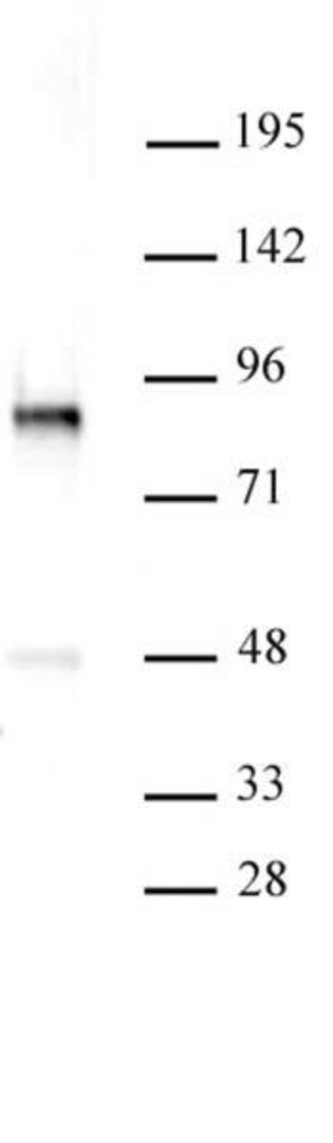 PKC-B Rabbit anti-Human, Unconjugated, Polyclonal, Active Motif:Antibodies:Primary