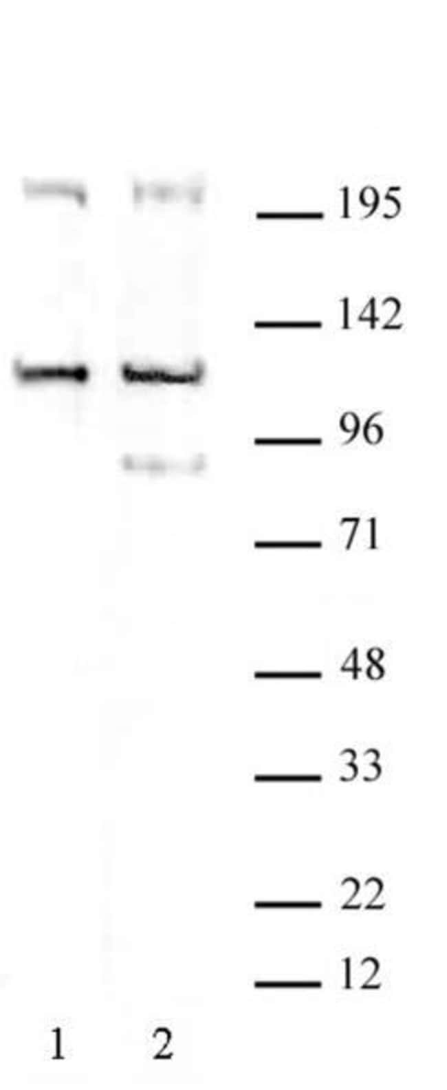 TRIM37 Rabbit anti-Human, Mouse, Unconjugated, Polyclonal, Active Motif:Antibodies:Primary