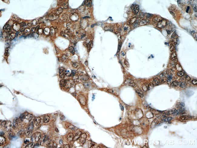RPS3 Mouse anti-Human, Mouse, Rat, Clone: 2G7H4, Proteintech 20 μL; Unconjugated Produkte