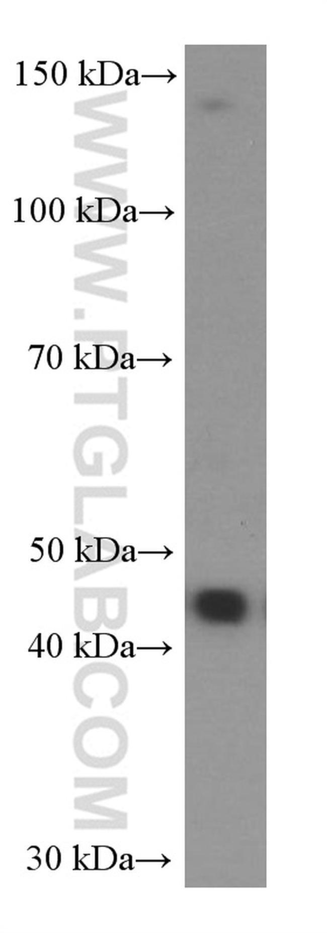 NOB1 Mouse anti-Human, Clone: 8C11A12, Proteintech 150 μL; Unconjugated Ver productos