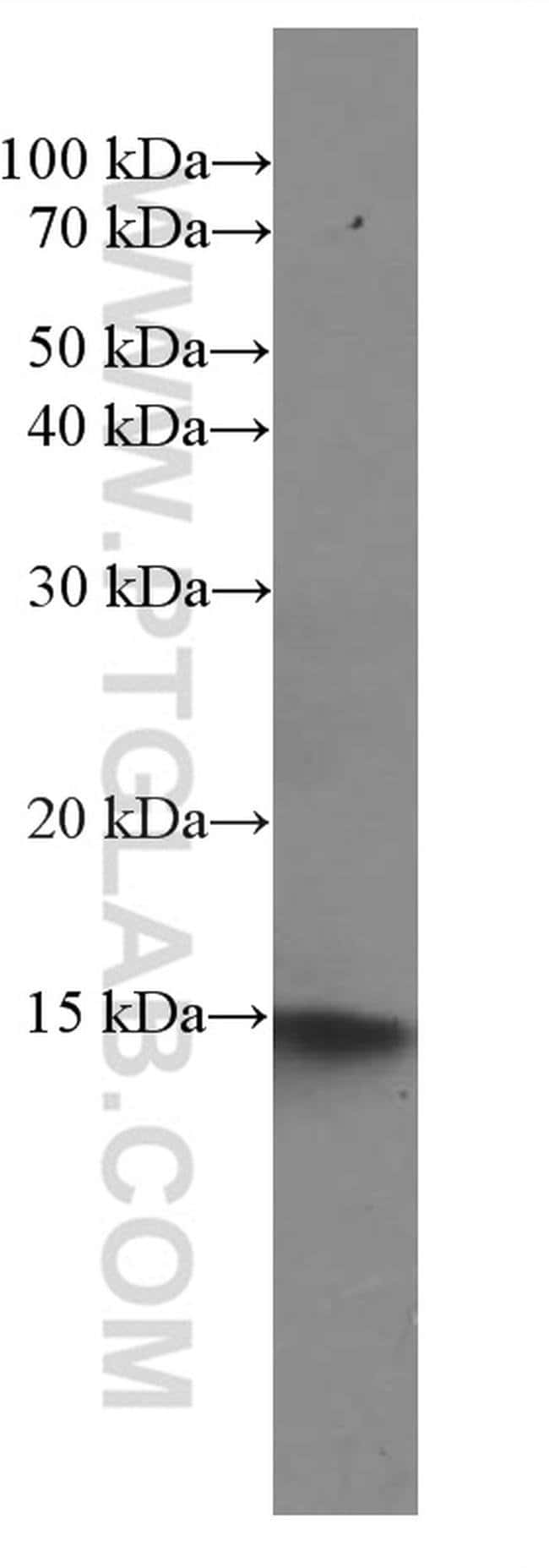 NDUFS5 Mouse anti-Human, Clone: 2C2A5, Proteintech 20 μL; Unconjugated Ver productos