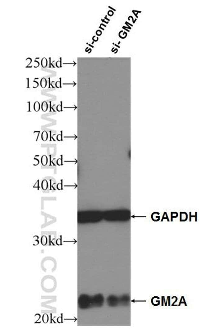 GM2A Mouse anti-Human, Clone: 1E4D3, Proteintech 20 μL; Unconjugated Ver productos