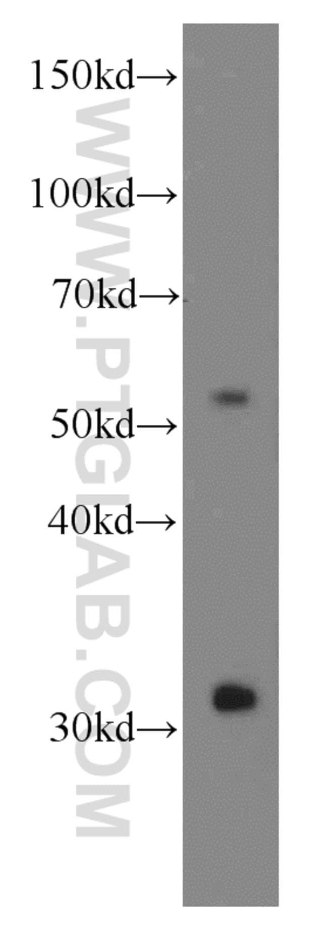 Iduronate 2 sulfatase Mouse anti-Human, Mouse, Porcine, Rat, Clone: 1A3F9, Proteintech 20 μL; Unconjugated Ver productos