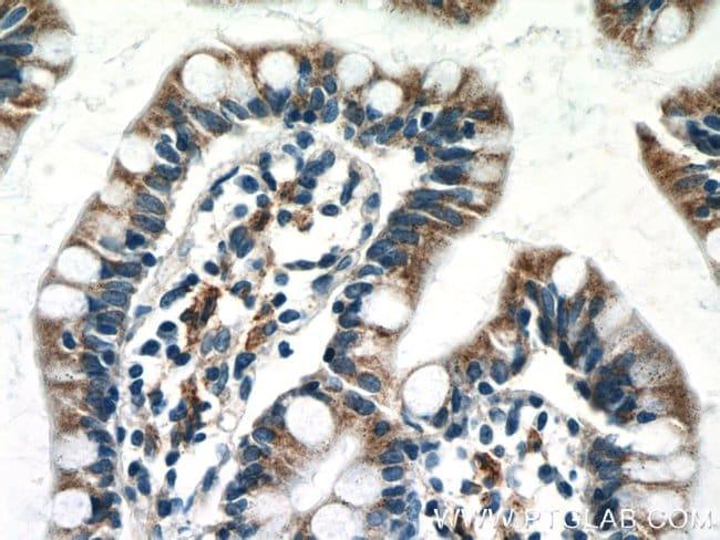 NAPRT1 Mouse anti-Human, Mouse, Clone: 5D8H10, Proteintech 20 μL; Unconjugated Ver productos