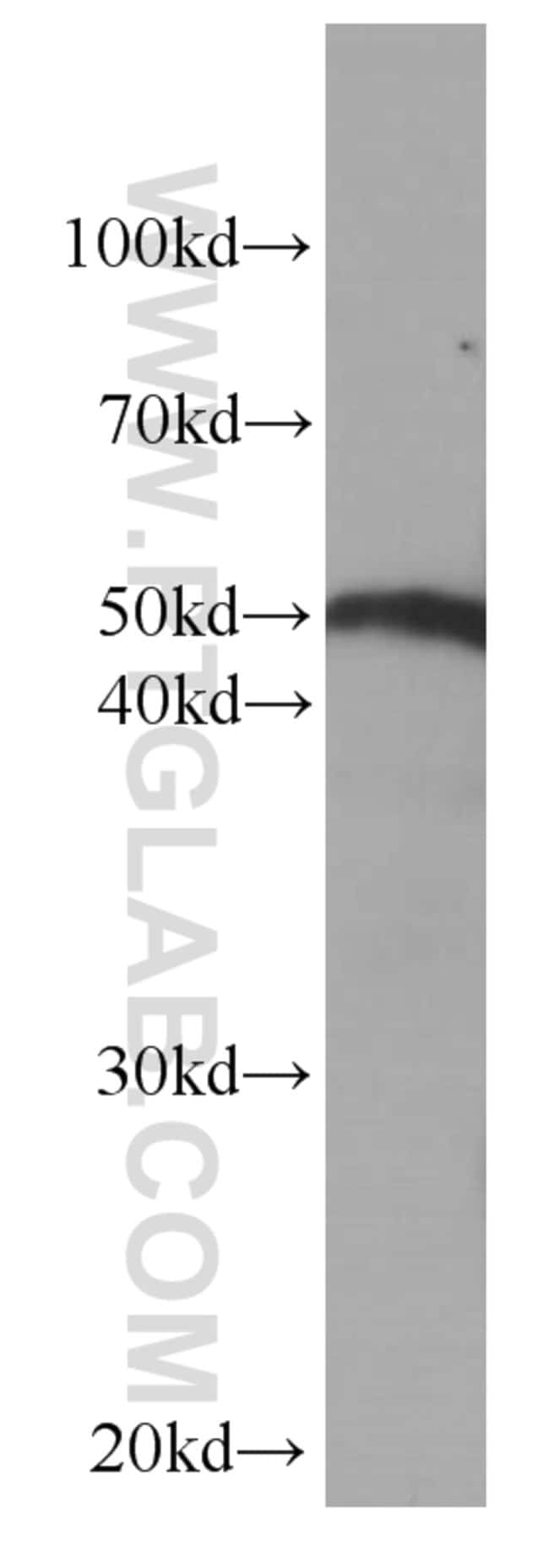Fibrinogen beta chain Mouse anti-Human, Clone: 1F8E4, Proteintech 150 μL; Unconjugated Ver productos