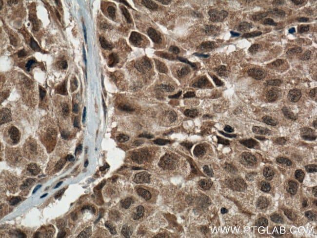 p38 MAPK Mouse anti-Human, Porcine, Clone: 1A1C2, Proteintech 150 μL; Unconjugated Ver productos