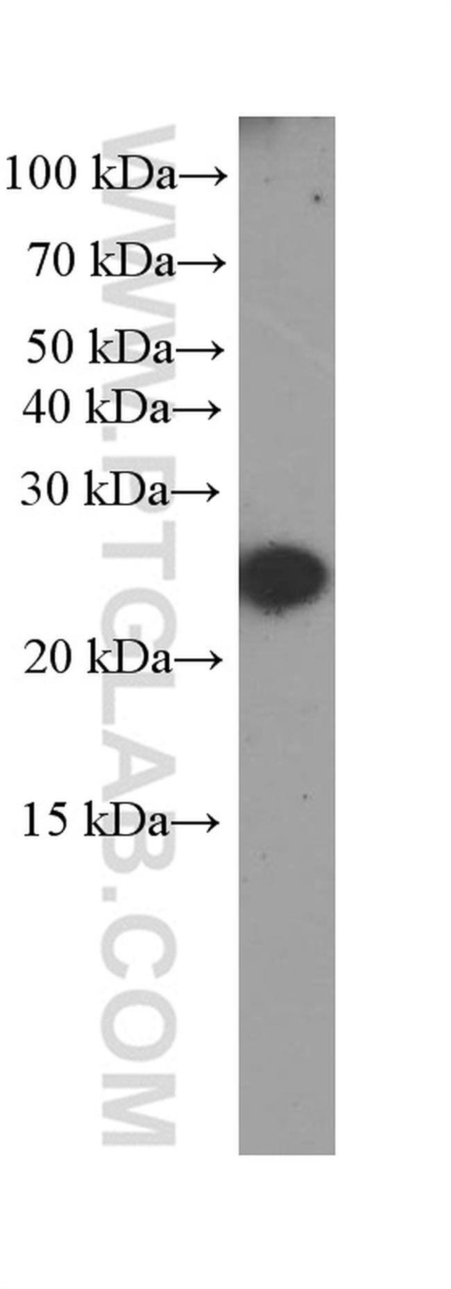 CRP Mouse anti-Human, Mouse, Porcine, Rat, Clone: 3F10A11, Proteintech 150 μL; Unconjugated Ver productos