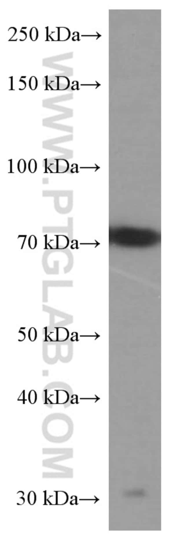 alpha-1B-glycoprotein Mouse anti-Human, Clone: 4D4E5, Proteintech 150 μL; Unconjugated Ver productos