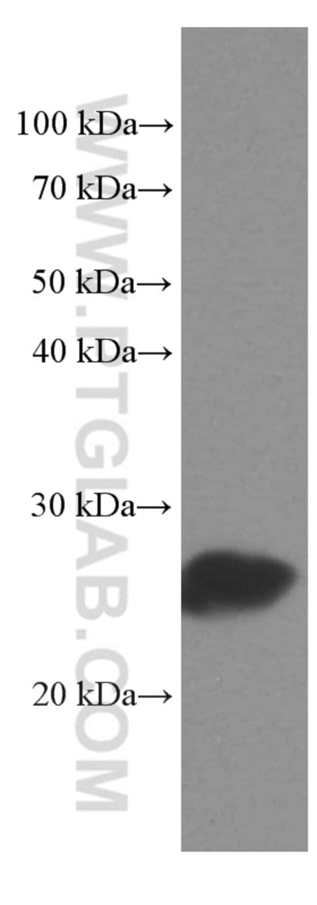 MYL3 Mouse anti-Human, Mouse, Porcine, Rat, Clone: 2E4B2, Proteintech 20 μL; Unconjugated Ver productos