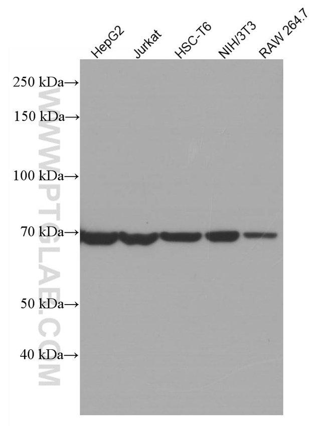 HSPA2 Mouse anti-Human, Mouse, Rat, Clone: 1A4A9, Proteintech 20 μL; Unconjugated Ver productos