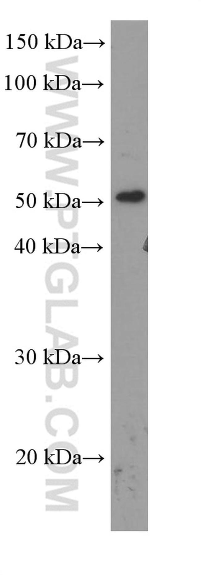 TBL2 Mouse anti-Human, Clone: 1D5C2, Proteintech 150 μL; Unconjugated Ver productos