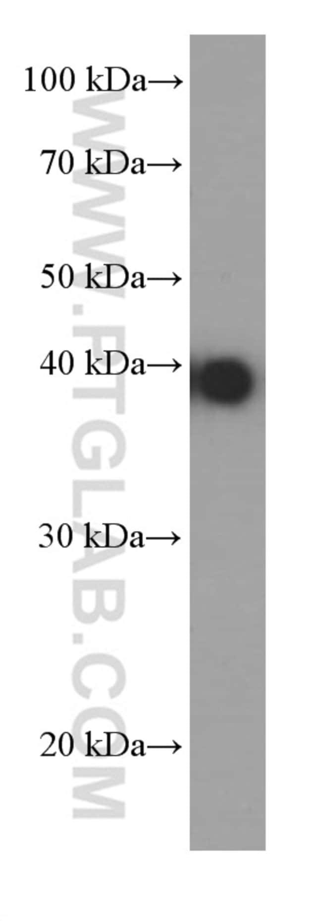 JUN Mouse anti-Human, Mouse, Rat, Clone: 1G6B11, Proteintech 150 μL; Unconjugated Ver productos