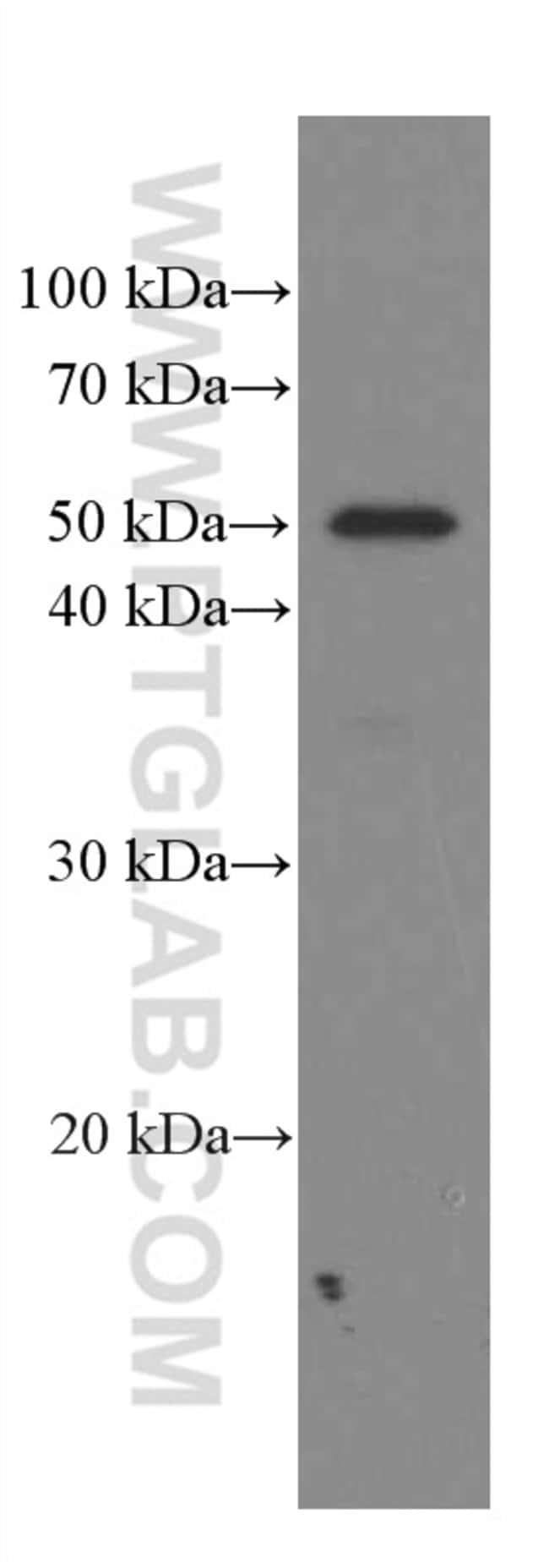 Phospho-TDP43 (Ser409, Ser410) Mouse anti-Human, Mouse, Rat, Clone: 1A2C1, Proteintech 100 μL; Unconjugated Ver productos