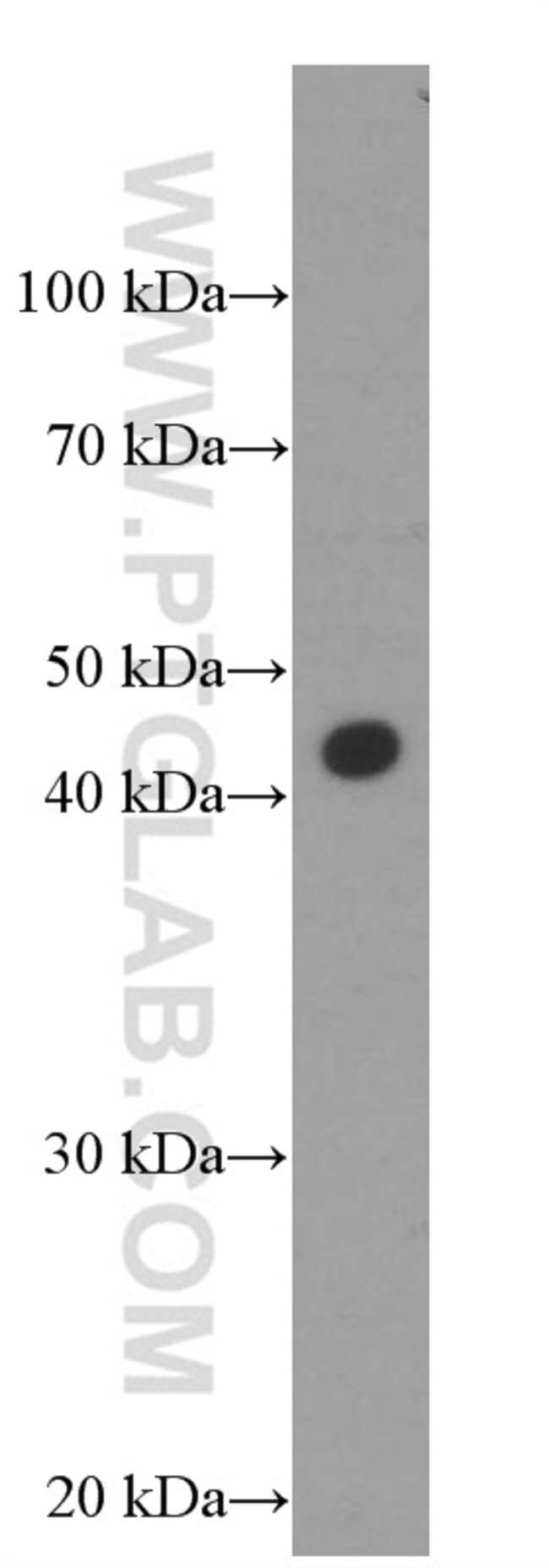MKP-2 Mouse anti-Human, Mouse, Porcine, Rat, Clone: 1G1C12, Proteintech 150 μL; Unconjugated Ver productos