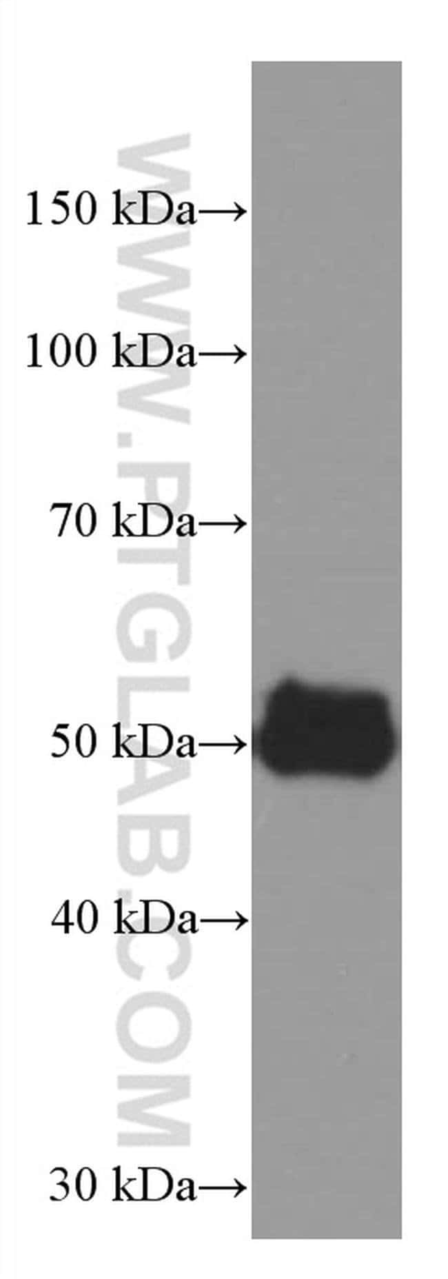 AGTR1 Mouse anti-Human, Mouse, Porcine, Rat, Clone: 2C5G11, Proteintech 20 μL; Unconjugated Ver productos